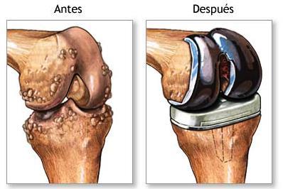Грязелечение от болезни суставов в испании бифлекс для суставов