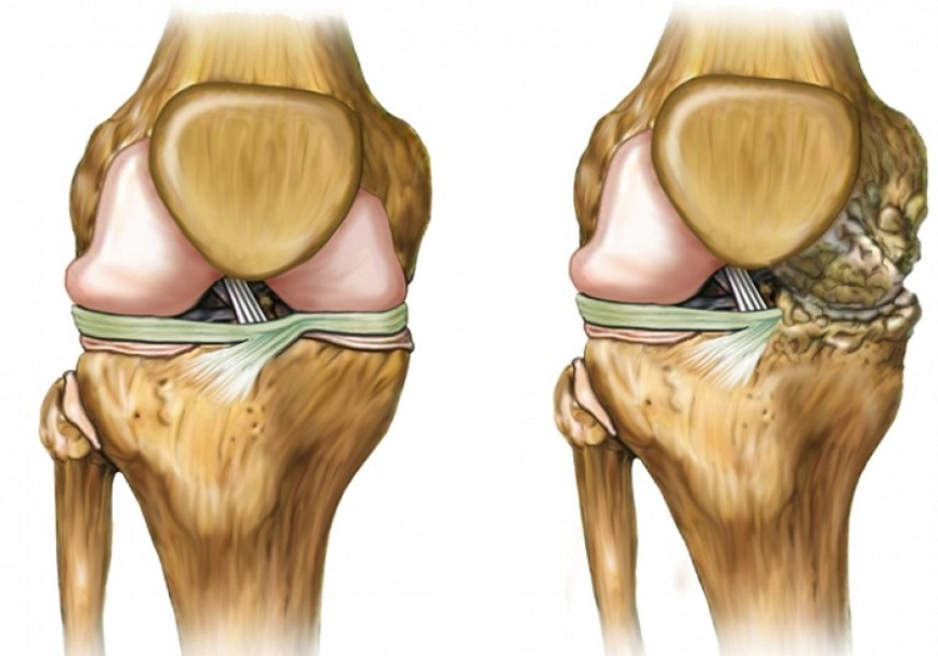 Контрактура плечевого сустава форум