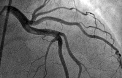 коронарография сосудов сердца