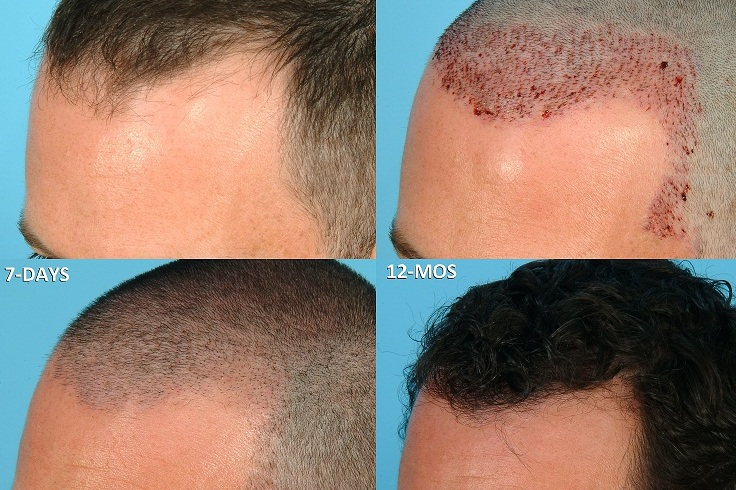 Пересадка волос средняя стоимость